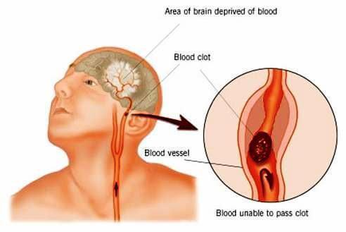 STROKE! Mik a Stroke Tünetei? Hogyan Ismerjük Fel?